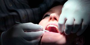 Top 3 Reasons You Shouldn't Fear Root Canal Therapy